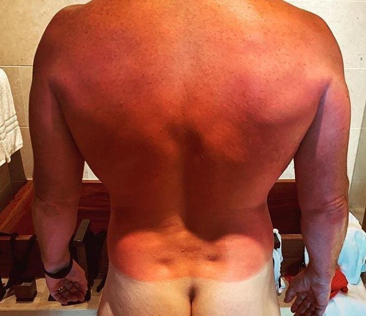 Chris Pratt Instagram Sonnenbrand nackt