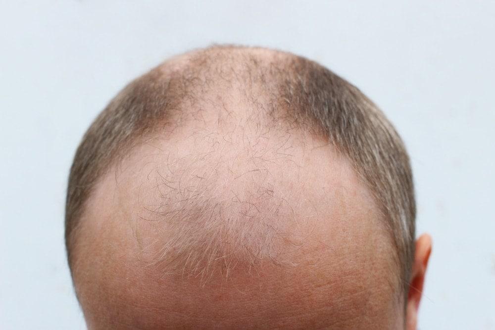 Mann Haarkranz wenig Haare