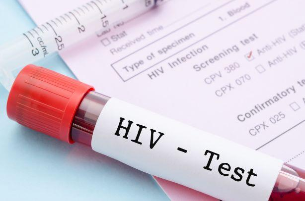 HIV-Test Aids-Test HIV