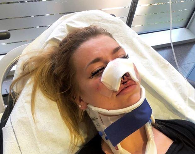 Miriam Behrens E-Scooter-Unfall