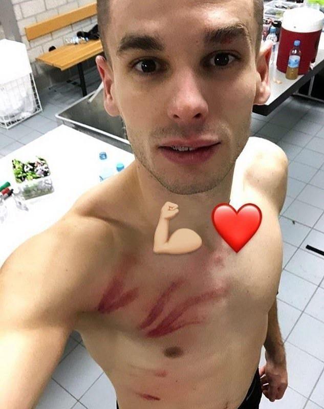 Mijat Gacinovic Verletzung