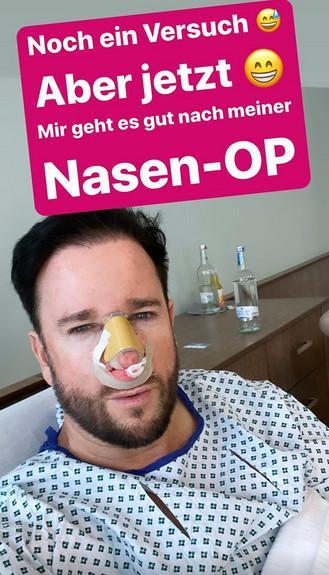 Michael Wendler Nasen OP Instagram Story