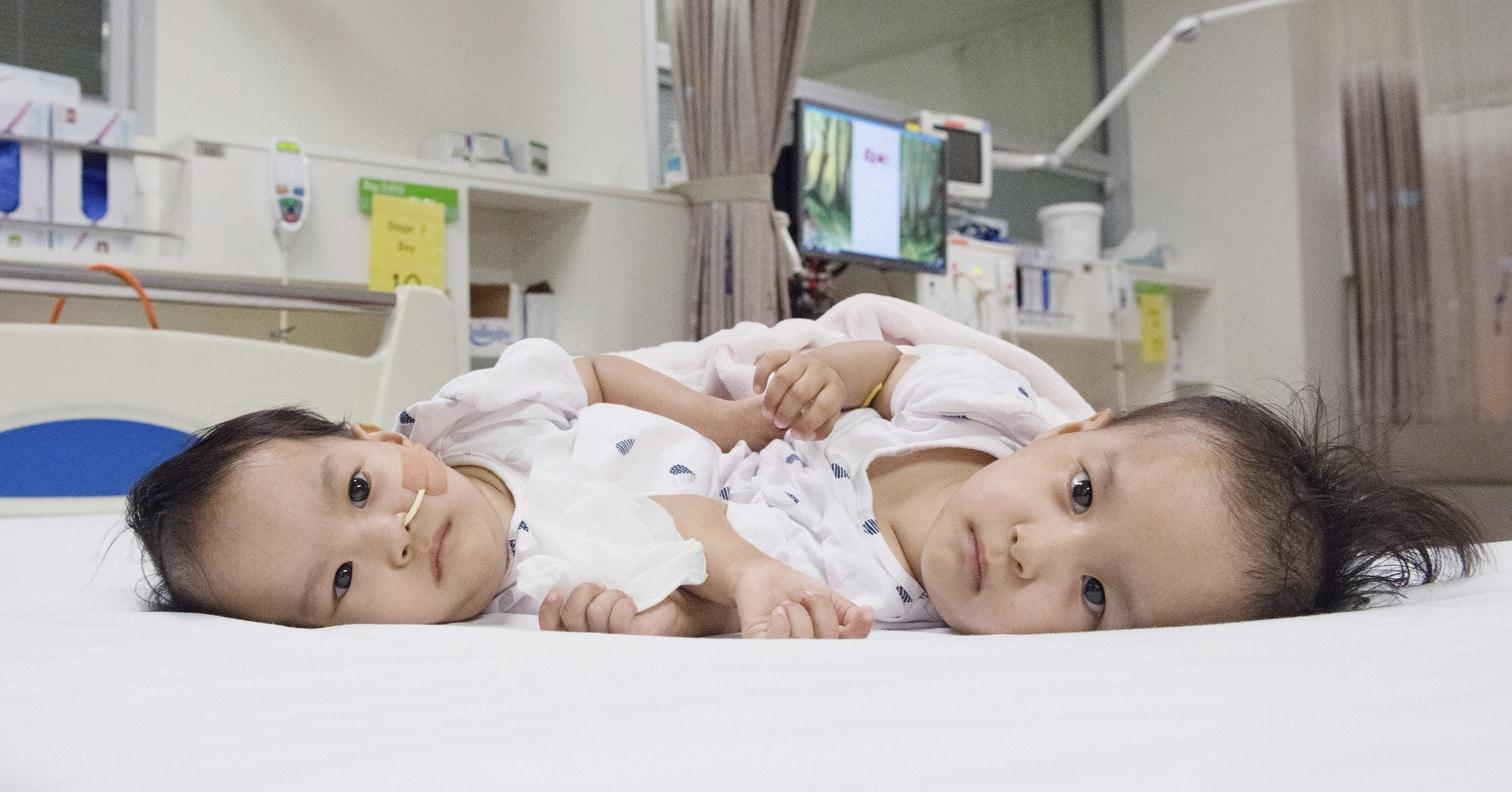 <p>In einer sechsstündigen Operation haben Ärzte in Australien am Freitag siamesische Zwillinge aus dem Himalaya-Staat Bhutan erfolgreich getrennt. Die beiden 15 Monate alten Mädchen namens Nima und Dawa